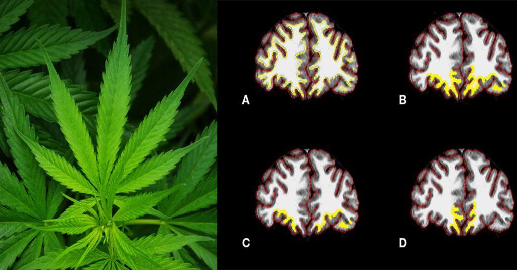 Studije otkrivaju : Kanabis može ZAUSTAVITI STARENJE vašeg MOZGA