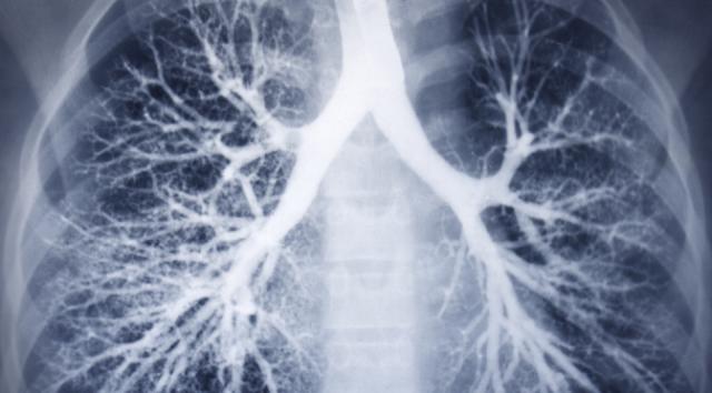 5 Najboljih prirodnih lijekova za čišćenje pluća od nikotina i katrana