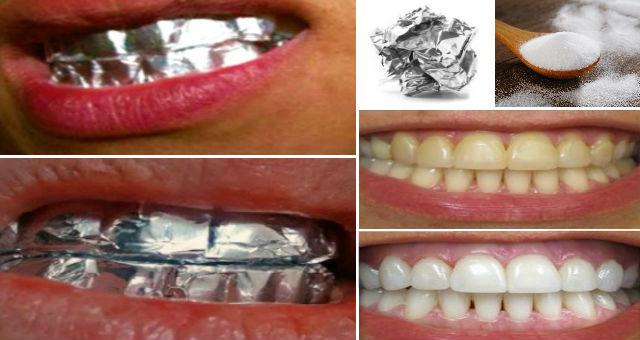 Genijalno! Evo šta se dogodi kada UMOTATE vaše ZUBE u ALUMINIJSKU FOLIJU
