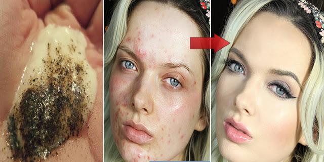 Pomiješajte ova dva sastojka i pogledajte šta se događa vašoj koži nakon nekoliko minuta