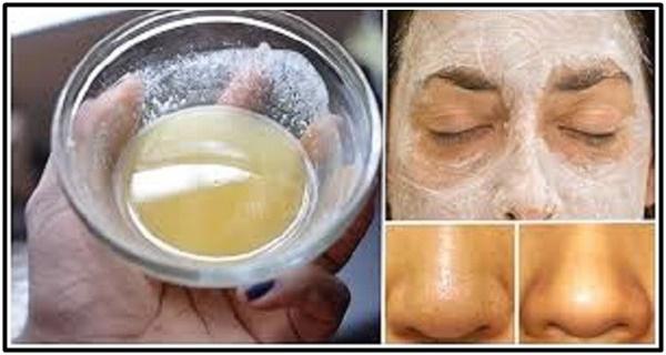 Kako da koristite sodu bikarbonu za predivno lice i kožu