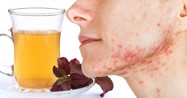 Pijte ovaj čaj kako biste smanjili nivo holesterola, spriječili akne i smanjili anksioznost