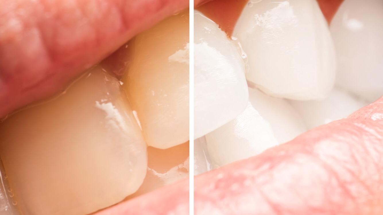 5 Jednostavnih načina za prirodno izbjeljivanje zuba