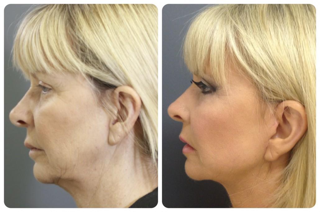 5 jednostavnih prirodnih stvari koje možete koristiti za zatezanje lica