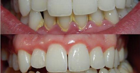 Utrljajte ova dva eterična  ulja u desni i zube i vjerovatno više nećete morati ići zubaru!