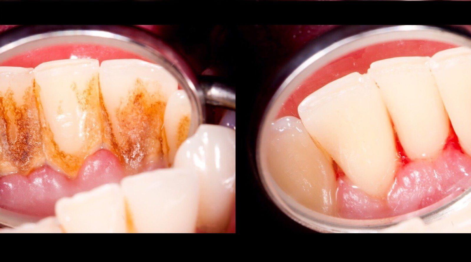 4 Prirodne smjese koje potpuno uklanjaju plak sa zuba
