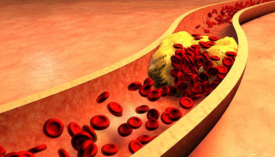 Kako da očistite začepljene arterije sa samo 3 prirodna sastojka