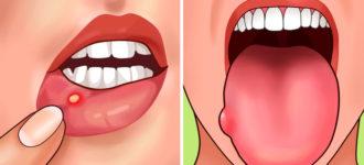 7 znakova da je vašem organizmu potrebno više folne kiseline