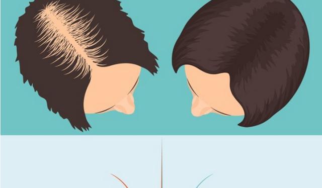 Ova tri sastojka potiču rast snažne i bujne kose preko noći